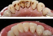 tártaro e dente