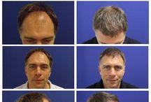 Haartransplantation vorher nachher / Haartransplantation Ergebnisse - Haartransplantation vorher nachher   http://www.prohaarklinik.at/