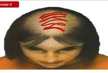 Causas y tipos de Alopecia