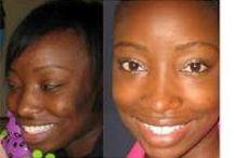 Skin Lightening / great products for skin lightening, http://www.whitechic.net