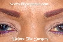 Blepharoplasty Eyelid Surgery / This is my Blepharoplasty upper eyelid surgery for anyone interested in seeing photos from beginning to end.