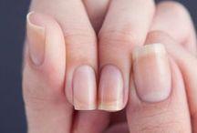 ногтии
