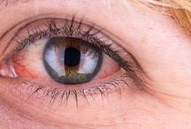 Why Your Eyes Might Be Red and Itchy | HealthInfi
