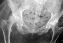 Hip pain/rehab