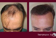 Μεταμόσχευση μαλλιών | Εικόνες πριν και μετά / www.kord.gr Μεταμόσχευση μαλλιών με τις μεθόδους FUE & FUT στην κλινική μαλλιών Bergmann Kord.