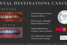 Before and After Dental treatments in Cancun / Some Before and After photos from Cancun's Experienced and Established Dental Implant Clinic. #Dentaldestinationscancun