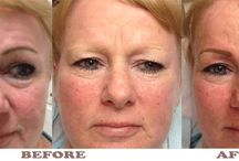 Permanent Cosmetics / Permanent Cosmetics