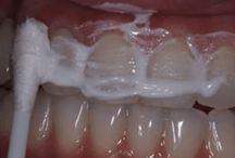 zuby ☺