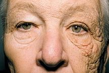 Sun Damage / Reversing sun damage is a very common reason people seek treatment at The Medical Spa. Depending on your concerns, we actually have several different options to treat sun damage with amazing results.  www.themedicalspa.com