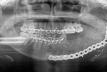 Oral & Maxillofacial Surgery - OMS
