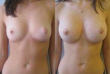 photo avant et apres chirurgie esthetique