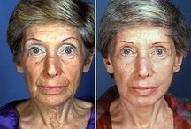 Augment Elegance To Your Face Utilizing Face Toning Exercises / Obtain An Oriental Non-Surgical Facelift By Making Use Of Facial Firming Aerobics