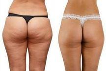 Melhorar o corpo