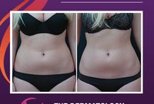 Vanquish / Vanquish is a new, revolutionary procedure in permanent fat reduction, offering painless and surgery-free treatments that require no downtime