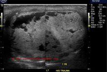 testes ultrasound