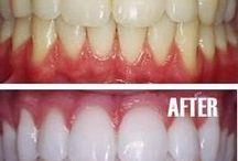Como blanquear dientes