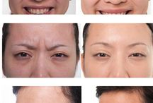 Botox Treatment in Dwarka, New Delhi / A board about Botox Treatment. See more on http://www.kashyapskinclinics.com/botox.html