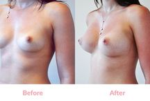 Furry Brazilian Breast Implants (before and after) / 'Tear-Drop' Implants can only be inserted through an incision 'under the breast' (Infra-mammary). They are increasingly popular and PROVEN SAFER Implants. The main advantage of 'Tear-Drop' implants over Round implants is that they allow a more natural, sloping breast profile from collar-bone down to nipple and the avoidance of a 'stuck-on' look from excessive fullness in the upper breast which can occur in some patients with Round Implants.