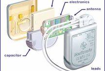 Defibrillation / Defibs, Defibrillators, AED, Cardioverter, Biphasic