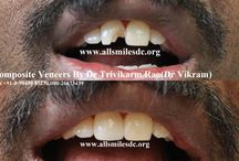 Instant Composite Veneers In Bangalore. / Smile makeovers in Bangalore with composite veneers by Cosmetic Dentist Dr Trivikram(Dr Vikram).It involves cosmetic makeover of teeth in just 1 hour with Composite veneers.At  . ALLSMILES- Located only at - N0.64, SHANKAR MUTT MAIN ROAD BASAVANAGUDI. (no other branches). BANGALORE-560004.KARNATAKA. INDIA. E-MAIL- allsmilesdc@hotmail.com  PH +91-0- 98450 85230.080-26673439 .