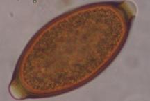 Parasites/worms microscopy