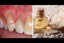 восстановление шейки зуба