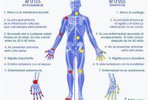 Artrocidad