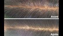 problème cheveux