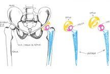 cuidados despues de protesis de cadera