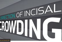 Correction of Incisal Crowding - Dentaltown