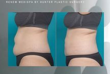 CoolSculpting and Cooltech