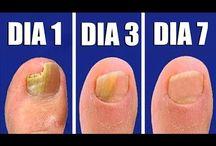 Remedio contra hongos en las uñas