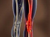 Sciatica / Dr. James Schofield, Pittsburgh North Hills Chiropractor, discusses sciatica and how to obtain relief of sciatic nerve pain. Schofield James Chiropractor 5000 McKnight Rd #208, Pittsburgh, PA 15237 (412) 367-3313