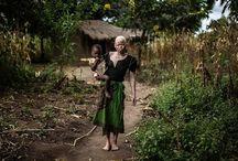 albinismo en Africa