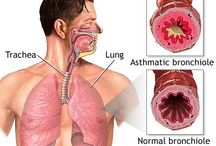 Asthma Attack / Asthma attack — Comprehensive overview covers treatment, warning signs of this potentially life-threatening situation.