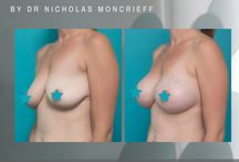 Breast augmentations