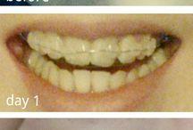 Orthodontics / Treatment