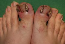 Nail Avulsion / For excision in case of ingrown toenails and other nail disorders