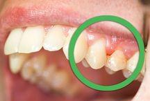 Dents gencives produits naturels