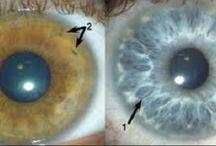 mejora tu vista
