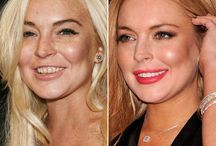 Celebrity Smiles Before & After
