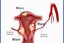 Obat Herbal ( Kanker Miom ) Paling Ampuh AMANAH HERBAL ®