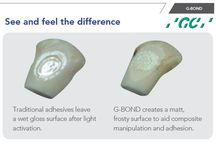 #GBond / G-BOND is a new, revolutionary 7th Generation (single component) adhesive that takes the guesswork out of bonding. The unique combination of Phosphoric Acid Ester Monomer and 4-MET Adhesive Technology creates superior etch and adhesion to enamel, in addition to providing a chemical and mechanical seal to dentin
