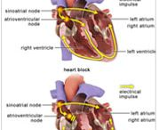 Heart Block Treatment In India / India Cardiac Surgery Site provides you with best and low cost Heart Block Treatment along with best hospitals in India.