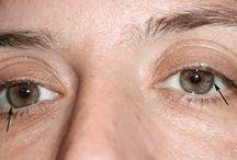 oog plaatje diagnose