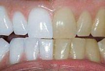 schone tanden