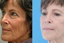 How You Can Receive A Natural Facelift Tasking Facial Regeneration Workouts / Facial Exercises For A Fantastic No Surgery Facelifts For Gents And Ladies