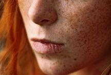 Freckelishish
