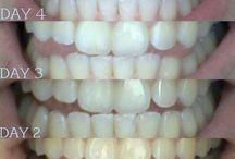 Teeth white