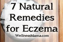 Healing - Eczema